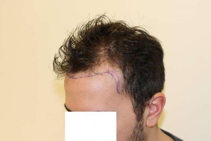 Пересадка волос воронеж цены
