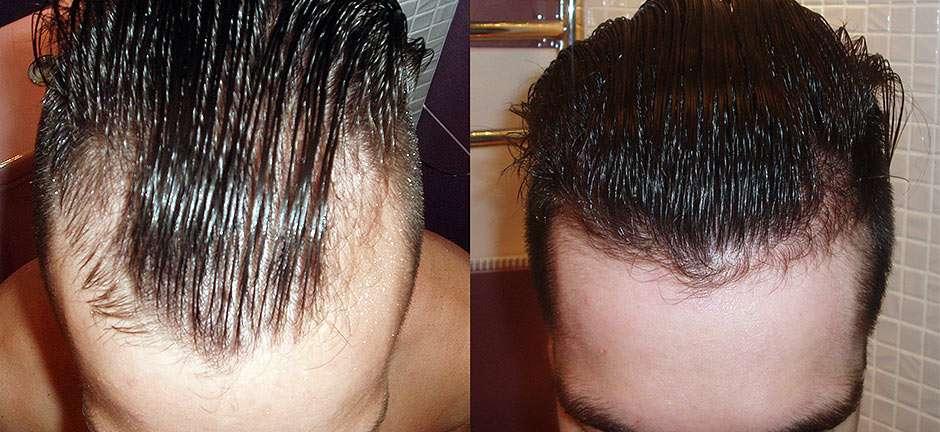 Фото результатов применения миноксидила и финастерида до и после