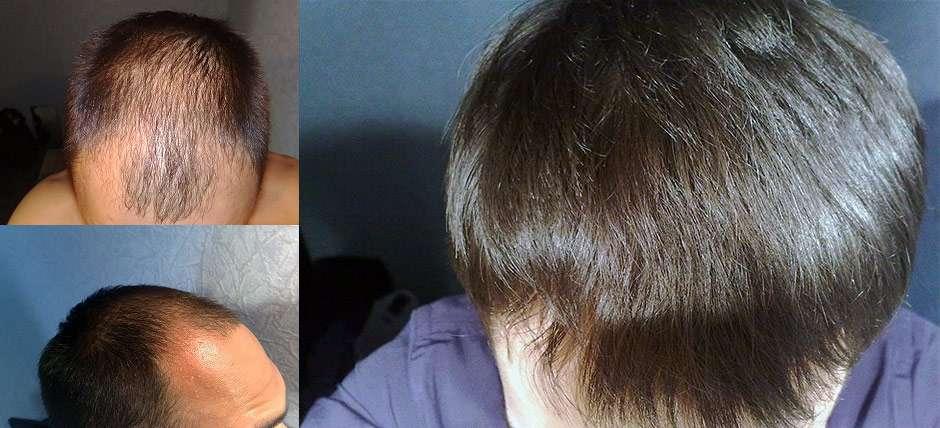 сильно выпадают волосы у женщины что делать форум