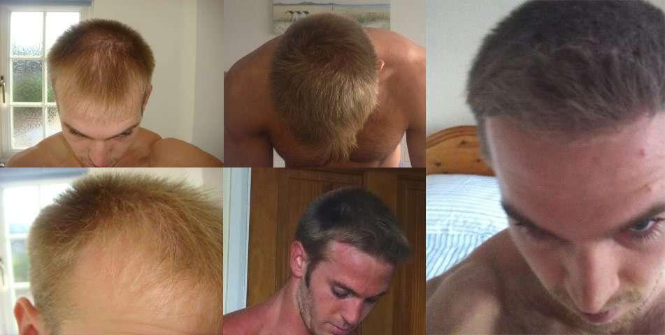 У нежелательных волос нет шансов!