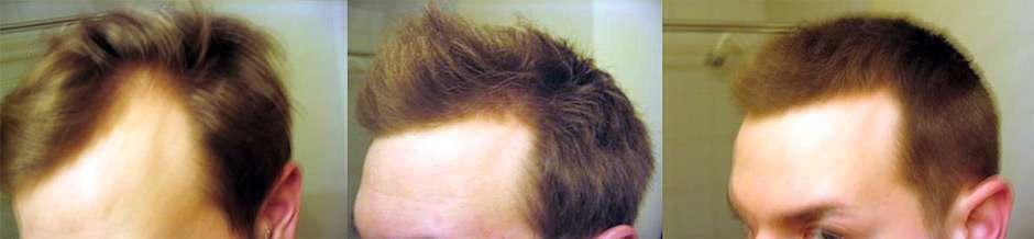 Миноксидил для волос как применять
