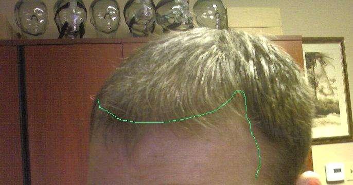 Частичное облысение головы